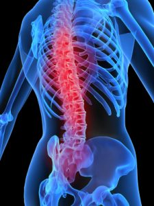 back pain, range of motion, flexibility, fitness, personal training, rehabilitation, kinesiology